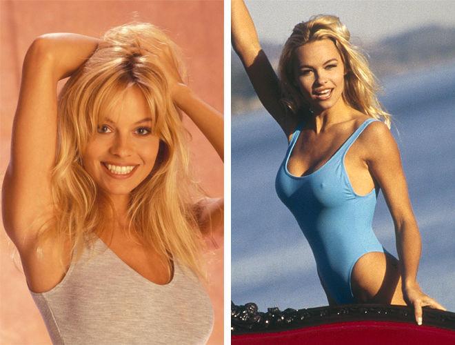 Памела Андерсон фото до и после пластики
