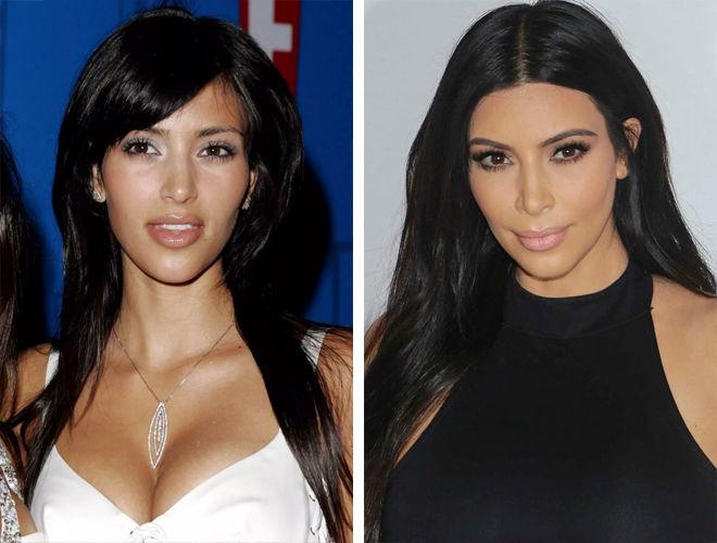 Фото Ким Кардашьян до и после пластики