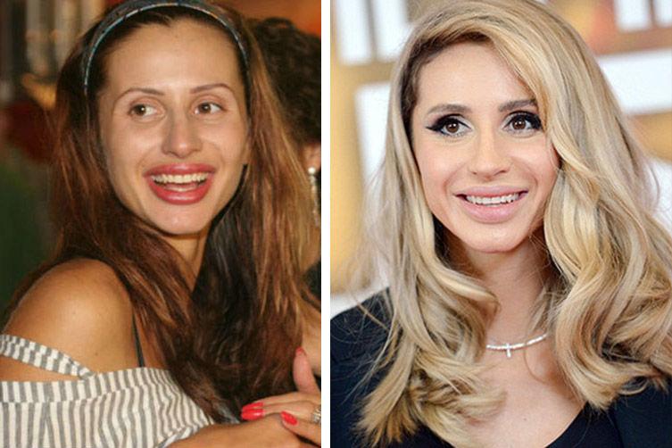 рынок предлагает светлана лобода фото до и после похудения можете